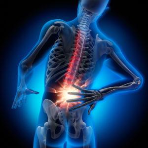 Rückenprobleme ganzheitlich betrachtet